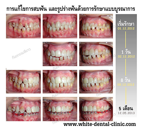 Dental Cosmetic @ WDC